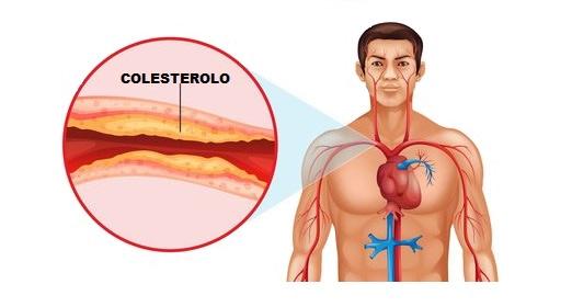 Colesterolo Buono E Cattivo: La Guida Completa