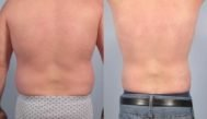 Cellulite Maschile